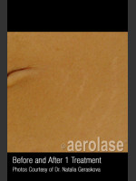 After Photo Treatment of Striae #345 - ZALEA Before & After