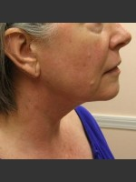 After Photo Dr. Langdon Precision TX  - Prejuvenation Before & After