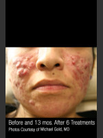 Before Photo Treatment of Cystic Acne #300 - ZALEA Before & After