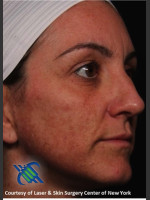 Before Photo Right Side Full Face Rejuvenation - ZALEA Before & After