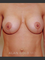 After Photo Mastopexy and Augmentation 515 - ZALEA Before & After