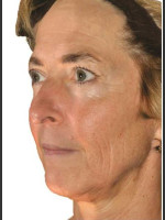 Before Photo Infini Facial Laxity and Rhytides Treatment - ZALEA Before & After