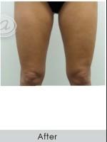 After Photo Vanquish for Thighs - Prejuvenation Before & After