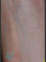 After Photo Treatment of Forearm Tattoo - ZALEA Before & After