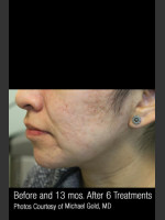 After Photo #301 - Treatment of Cystic Acne - ZALEA Before & After
