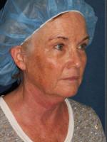 Before Photo Chin Contouring & Sun Damage Treatment - ZALEA Before & After