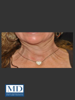 Before Photo Neurotoxin of Neck 132 - ZALEA Before & After