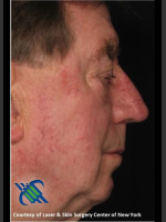 After Photo Male Full Face Fraxel Treament - Prejuvenation Before & After