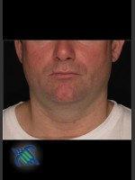 Before Photo Treatment of Male Neck with Laser Liposuction - Prejuvenation Before & After