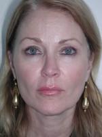 Before Photo Sculptra for Facial Volume Restoration - Prejuvenation Before & After