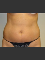 Before Photo Liposuction of Abdomen 8087 - Prejuvenation Before & After