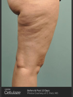 Before Photo Cellulaze Cellulite Treatment of the Thighs - Prejuvenation Before & After