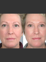 Before Photo Two women with Laser Eyelid Blepharoplasty - ZALEA Before & After