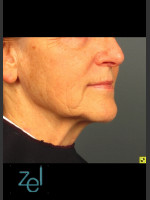 After Photo Lower Face Ultherapy & Dermal Fillers - Prejuvenation Before & After