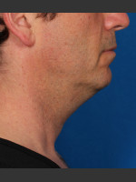 Before Photo Kybella Treatment 47 Year Old Male - Prejuvenation Before & After