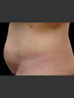 Before Photo Body Contouring Treatment #117 - Prejuvenation Before & After