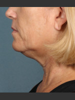 Before Photo Kybella Treatment 54 Year Old Female - ZALEA Before & After