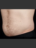 After Photo SculpSure Abdomen - Prejuvenation Before & After