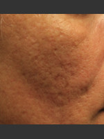 Before Photo Infini Acne Scar Treatment #12 - ZALEA Before & After