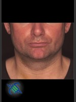 After Photo Treatment of Male Neck with Laser Liposuction - Prejuvenation Before & After