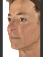 After Photo Infini Facial Laxity and Rhytides Treatment - ZALEA Before & After