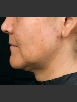 Before Photo Thermage Procedure Before and After I - ZALEA Before & After