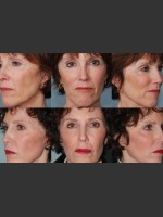 After Photo Single treatment of fully ablative  Laser Resurfacing - Prejuvenation Before & After