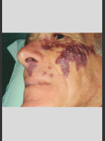 Before Photo Vbeam Laser Treatment of Port Wine Stain - ZALEA Before & After
