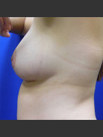 After Photo Breast Augmentation Case #1 - ZALEA Before & After