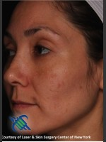 After Photo Pigment Facial Skin Rejuvenation - ZALEA Before & After