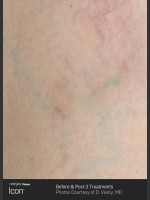 After Photo Leg Vein Clearance Using Icon - ZALEA Before & After