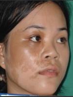 Before Photo Quanta MDK Treatment of Pigment #78 - Prejuvenation Before & After
