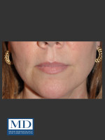 Before Photo Lip Filler 135 - ZALEA Before & After