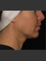 After Photo Treatment of Neck Contour - Prejuvenation Before & After