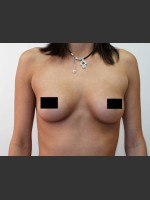 Before Photo Breast Augmentation - ZALEA Before & After