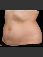 After Photo SculpSure Abdomen - Prejuvenation Before & After