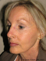 Before Photo Facelift 6944 - ZALEA Before & After