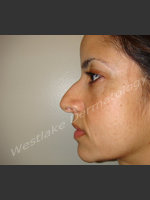 Before Photo Rhinoplasty Treatment of Female Patient - ZALEA Before & After