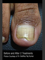 After Photo Treatment of Nail Fungus #321 - Prejuvenation Before & After