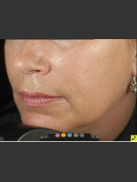 After Photo Botox Dermal Fillers and Pigment Removal  - ZALEA Before & After