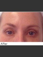 After Photo Undereye Filler + Exilis Elite Radiofrequency Skin Tightening - ZALEA Before & After