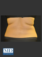 Before Photo  Body Contouring Treatment 141 - ZALEA Before & After