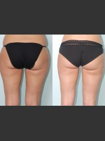 Before Photo Liposuction of waist, hips, thighs, and tummy. - Prejuvenation Before & After