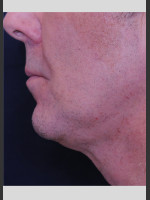 After Photo Profound Contour Treatment of Neck - ZALEA Before & After