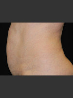 Before Photo Body Contouring Treatment #122 - ZALEA Before & After