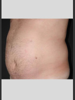 Before Photo UltraShape Body Contouring Abdomen - Prejuvenation Before & After