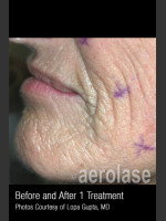 Before Photo Treatment of Wrinkles, Tone and Texture #341 - ZALEA Before & After