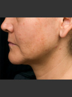 After Photo Thermage Procedure Before and After I - ZALEA Before & After