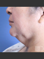Before Photo SmartLipo Liposuction of Lower Face - ZALEA Before & After