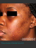 Before Photo NeoClear by Aerolase Acne Treatment - Prejuvenation Before & After